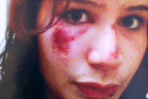 Danielle King showing the marks on her face after an incident in Hamilton. Photo / Supplied
