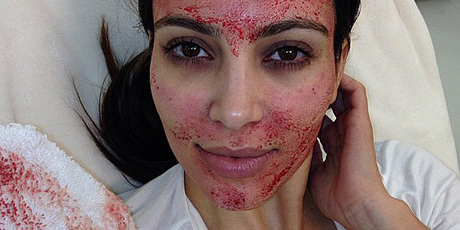 Kim Kardashian after undergoing a 'vampire facial'.