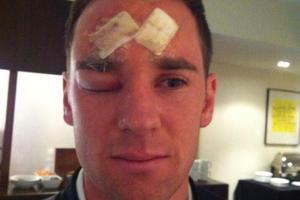 All Whites striker Shane Smeltz will visit the plastic surgeon for the second time this year after splitting his forehead open in Friday night's World Cup qualifier in Dunedin. Photo / Twitter.