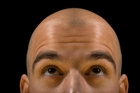 Baldness could be the first sign of heart disease.Photo / Thinkstock