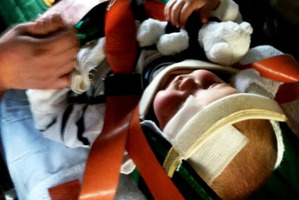 A 2-year-old boy with head injuries from the bombing clings to his teddy. Photo / Supplied