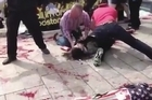 Cell phone footage shows the up-close mayhem after the Boston Marathon bomb blasts including multiple victims lying in pools of blood near the finishing line of the famous race.