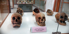 Some of the macabre exhibits on offer at the Siriraj Medical Museum. Photo / Supplied