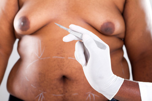 More men are willing to go under the knife to get rid of their 'moobs'. Photo / Thinkstock