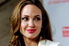 Angelina Jolie has had a preventive double mastectomy.Photo / AP
