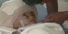  Indian medics operate on baby with swollen head 