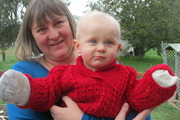 Little battler: Toddler's hands burnt by fire
