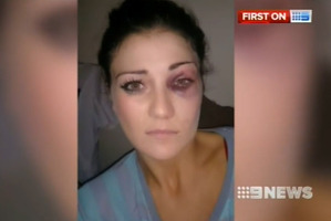 Katie Lewis claims she was bashed by South Sydney forward Ben Te'o. Photo / 9 News