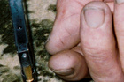 The marks on Robin Bain's thumb can be seen on this photographic evidence.