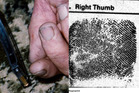 The marks on Robin Bain's thumb can be seen in photographic evidence, while there is an absence of fingerprint markings on the sample taken by police (right), which matches the marks.