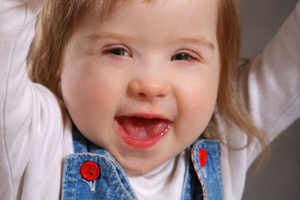 Scientists have made a breakthrough for Down's Syndrome - but warn it could be a while before there's gene therapy for the disease. Photo / AP