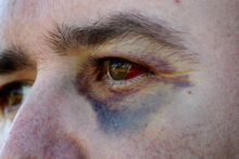 Glenn Cooper with bruises on his face after the assault in 2011 by Blues player Kurtis Haiu.  Photo / Sarah Ivey
