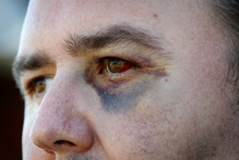 Glenn Cooper (pictured) showing the bruises on his face after an assault by Kurtis Haiu. Photo / Sarah Ivey