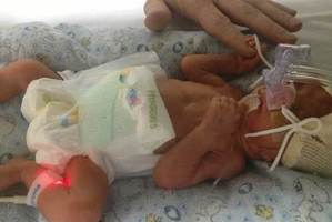 Lily Helen Hewgill was born prematurely in China.