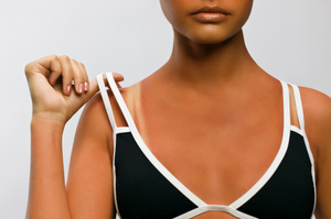 Sunburn is nature's way of telling us to find some shade. Photo / Thinkstock