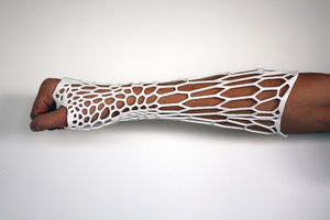 Jake Evill, from Nelson, designed the Cortex - a completely breathable, waterproof and lightweight cast for broken limbs.