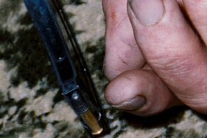 An evidence picture of Robin Bain hand which shows marks on his thumb.