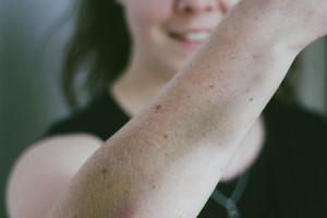 Erin Walker suffered bruising during the encounter. Photo / Erin Walker