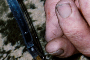 An evidence photo of Robin Bain's hand showing marks on his thumb which the TV3 documentary said came from loading the rifle.