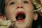 EARLY WARNING: If young children don't get their teeth checked until they go to school it can lead to health problems later in life.PHOTO/FILE