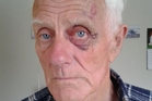 Dannevirke's Patrick Mullholland suffered a gashed head and a black eye after an attack by a dog in Rawhiti St last Thursday. Photo / Supplied