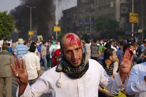 A bloodied protester after an attack during a Cairo rally.
