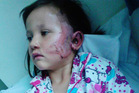 Elledy Harawira, who was burnt by a firework on Saturday night