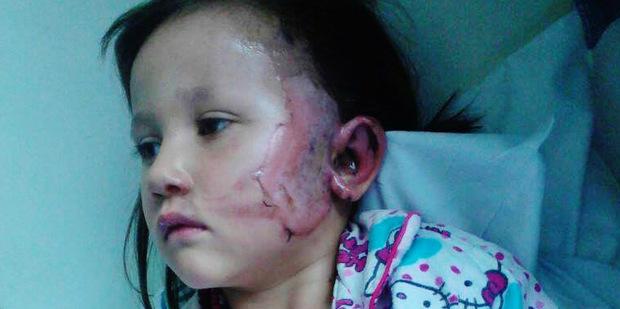 Elledy Harawira, who was burnt by a firework on Saturday night