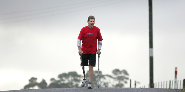 Marc Fenton was awarded $65,000 after he lost his leg in work accident at a sawmill.