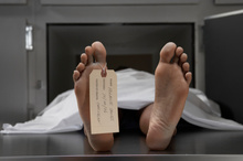 Spanish researchers have created a computer system that quickly determines the age and gender of a corpse. Photo / AP