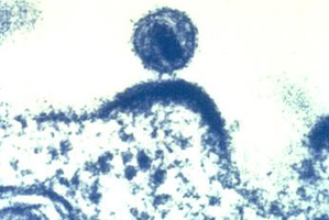 This microscopic image shows a HIV virus budding out of a human immune cell.