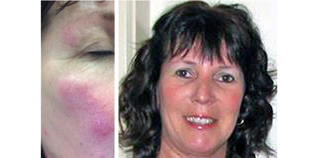 Debbie Roome had an allergic reaction after being bitten by bed bugs at an airport motel.