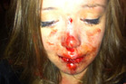 Ella Mere Eketone, shortly after allegedly being pushed to the ground. Photo . Before It's News website
