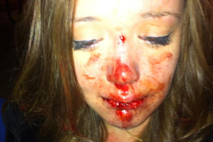 Ella Ekatone says a police officer pushed her to the ground with such force her teeth were ripped out at the roots. Photo / Supplied
