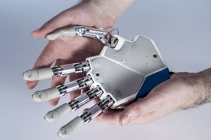 The hand will be attached directly to the patient's nervous system via electrodes. Photo / Independent