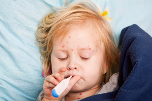Measles is a very infectious viral disease that starts with a high fever and respiratory symptoms. Photo / Thinkstock
