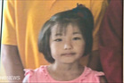 Young Sakurako's parents and a leading plastic surgeon are expected to hold a media conference in Auckland today.
