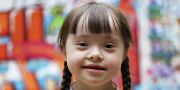 Today is World Down Syndrome Day. Photo / Thinkstock