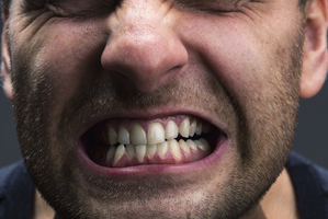 Teeth-grinding is becoming more common. Photo / Thinkstock
