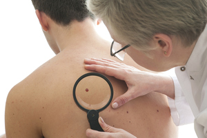 People suffering from itchy eczema may have less risk of skin cancer, according to new research. Photo / Thinkstock