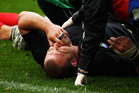 Tony Woodcock had a sickening head collision with Canadian flanker Adam Kleeberger in the pool rounds of the 2011 World Cup. Photo / Getty Images