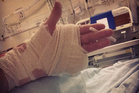 An Instagram photo shows the damage a raver did to his hand. Photo/Instagram