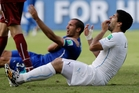 Uruguay's Luis Suarez holds his teeth after allegedly biting Italy's Giorgio Chiellini during a 1-0 victory which