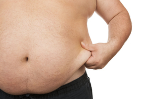 Could food capsules work better than weight loss surgery to combat obesity? Photo / Thinkstock