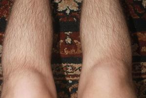 "Wendyl Nissen finds photos of hairy legs - such as this one - posted on social media sites ""challenging""."