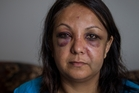 Praveet Singh was assaulted walking in Papatoetoe and is outraged that people ignored her cries.MICHAEL CRAIG
