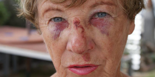 Lili Stanley, of Mosgiel, sustained injuries when she tripped in the undulating Dowling St car park on New Year's Eve