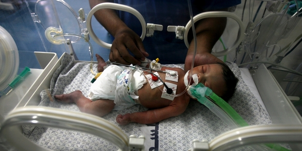 A doctor treats a 3-day-old Palestinian baby in Khan Younis. She was delivered prematurely after her 24-year-old mother was killed by a missile strike.