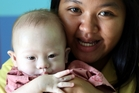 Thai surrogate mother Pattaramon Chanbua's son Gammy was born with Down syndrome. Photo / AP