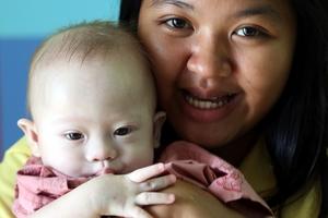 Thai surrogate mother Pattaramon Chanbua's son Gammy was born with Down syndrome. Photo / AP